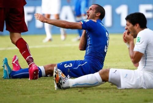 Chiellini reclama de dor no ombro, enquanto Suárez coloca as mãos no dente (Foto: Reuters)